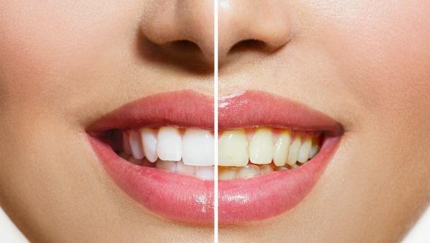 牙齒不是越白越好!牙醫師:別被媒體催眠了,有一點黃黃的才健康