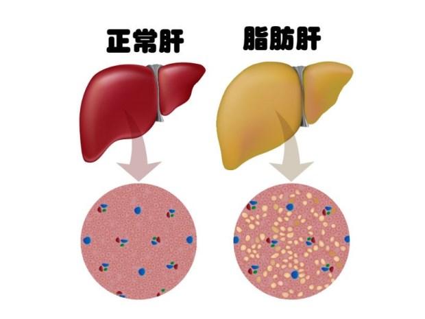 下图标本左边是正常肝,右边是脂肪肝.   Q2、脂肪肝会怎样?   黄金图片