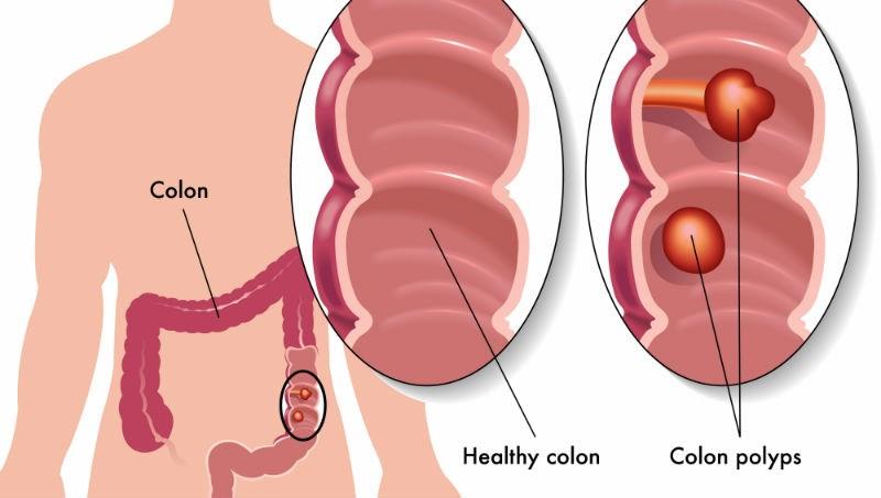 50歲後,每2人就有1人長息肉!肝膽胃腸科醫師:做對一件事,預防90%大腸癌/