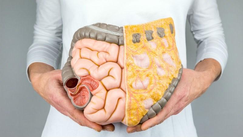 吃素、生機飲食,還是得大腸癌?台大醫師:●●才是影響腸癌發生率的重要因素/