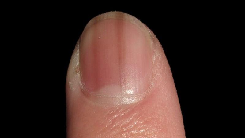 指甲有一條黑黑的線,小心是皮膚癌!皮膚科醫師教你:一張圖比對4大特點/