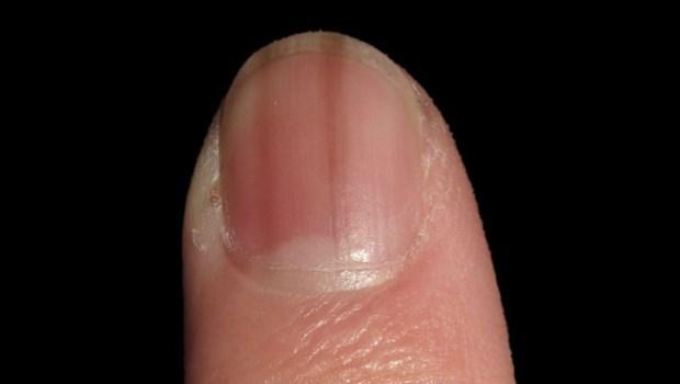 指甲有一條黑黑的線,小心是皮膚癌!皮膚科醫師教你:一張圖比對4大特點