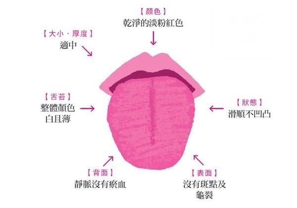 舌頭兩邊有牙印,代表你的身體過勞了!6種舌相看出你的健康狀況