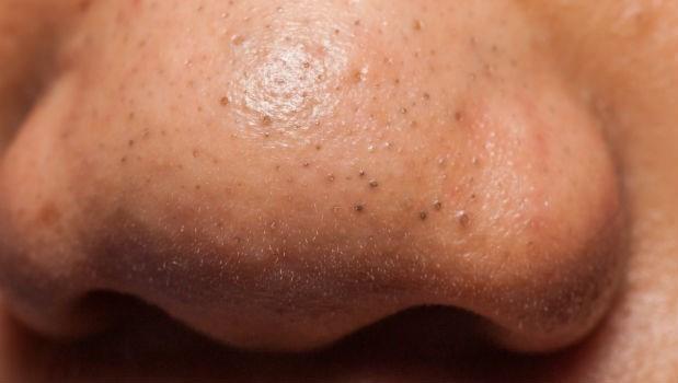 妙鼻貼會害毛孔粗大,而且再也回不去!日本皮膚科醫師打破保養騙術