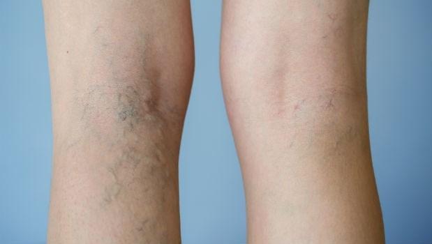 腿爆青筋怎麼辦?一個動作,改善靜脈曲張:讓血液回流、修復受損的靜脈