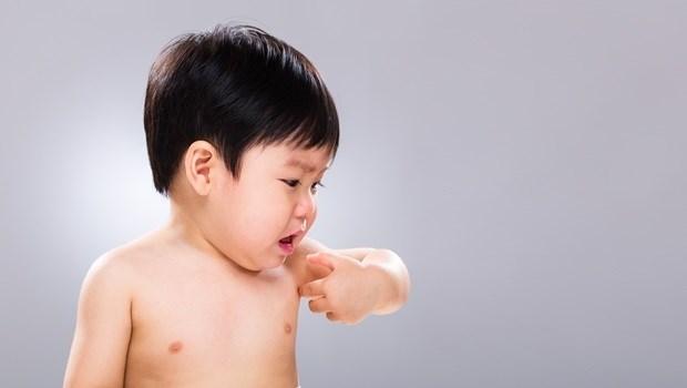 一換季,寶寶身上老是起疹子好心疼?長庚醫師教你不同「疹子」該怎麼辦