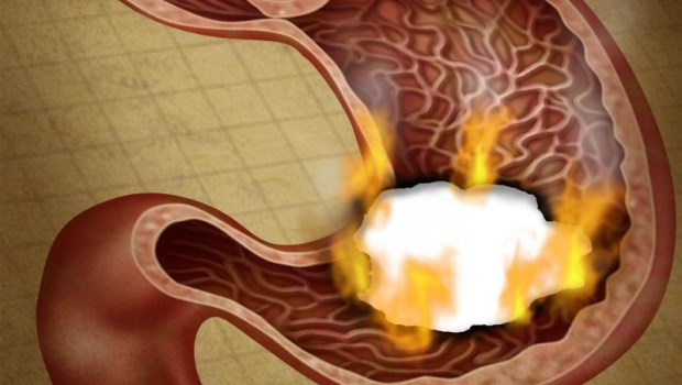 慢性胃炎,一直好不了?腸胃名醫教你:養胃3招,2年逆轉「胃癌前病變」