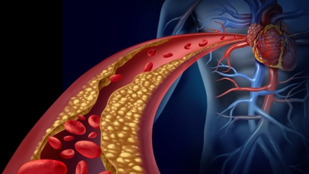 別錯怪膽固醇,動脈硬化的元兇其實是糖!一次破解膽固醇的4個迷思