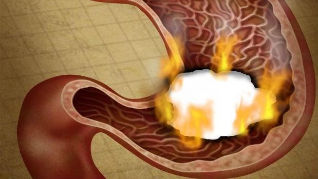 胃潰瘍就是胃把自己消化了!中醫師:保護胃黏膜就靠這一招