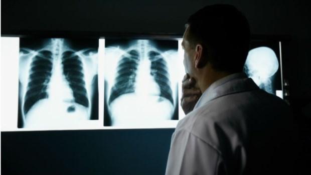健康檢查發現「肺結節」,該開刀嗎?關於肺腺癌,你一定要知道的幾件事...