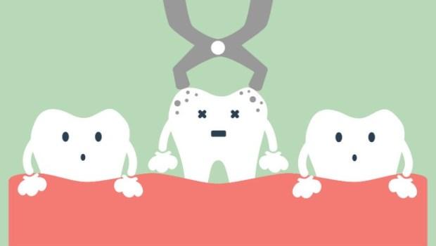 「牙齒又不痛,為什麼醫生要我抽神經?」牙醫一次破解「根管治療」的秘密