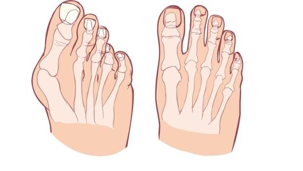 拇趾外翻害你穿鞋一走就痛?復健科醫師教你用OK繃,自製「矯正鞋墊」