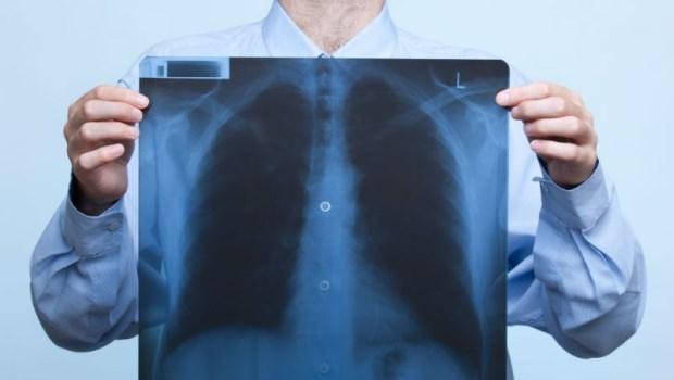 23歲「肺腺癌四期」抗癌日記催淚》胸腔重症醫師教你:如何找出肺癌最前兆