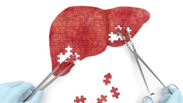 一張照片告訴你:原來「脂肪肝」長這樣!減重名醫教你:4招剷除肝包油