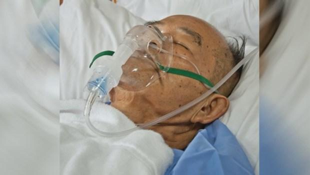一位加護病房醫師:我是醫師,我不要被插鼻胃管