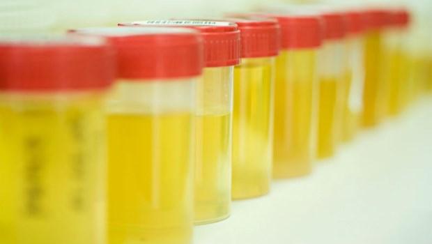 小便有泡泡≠腎生病!腎臟科醫師:壞的泡泡尿,有3種特徵
