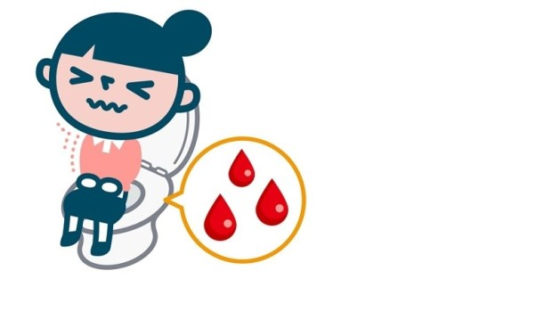 便祕、出血...痔瘡變嚴重,就有可能變成腸癌?腫瘤科醫師解惑