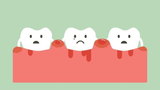 刷牙流血別以為沒關係!「牙周病」造成身體慢性發炎...比掉牙更悲慘的4種結局