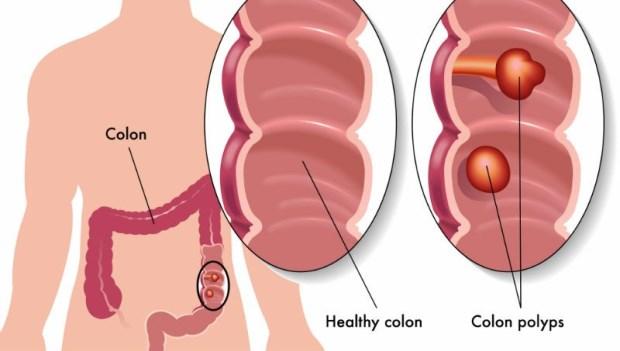 50歲後,每2人就有1人長息肉!肝膽胃腸科醫師:做對一件事,預防90%大腸癌