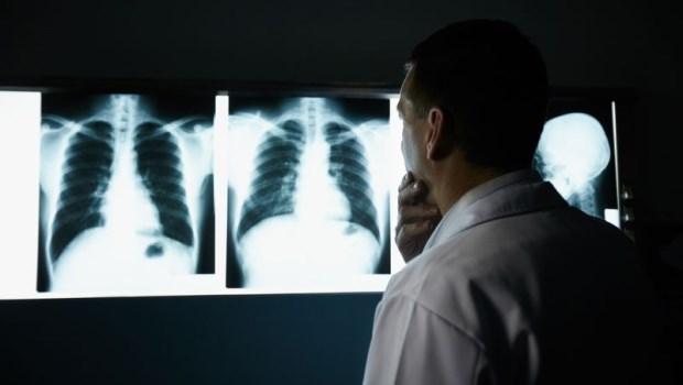 聽信「吃草藥治好肺癌」,看X光片時,連醫生都說不出話來…破解6大騙術,別再把神棍當神醫!