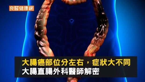 大腸癌部位分左右 會有不同症狀