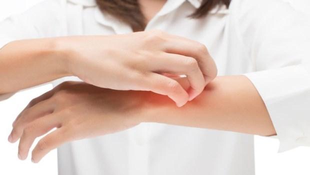 一到夏天濕疹又犯了,癢到抓不停...中醫師推薦:7種解毒食物改善皮膚炎!