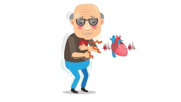 禿頭越嚴重,越容易得心臟病!看診20年心血管名醫:男人養心就吃這2種食物