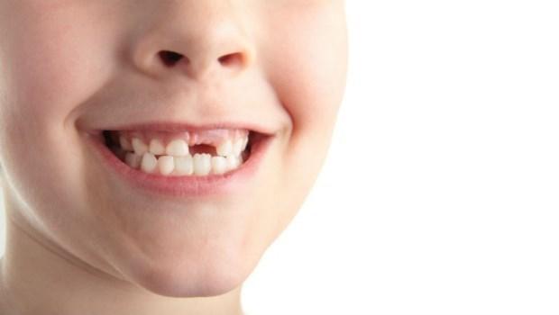 缺牙不補,竟會導致失智、跌倒風險增2.5倍!關於「缺牙」你該知道的5件事