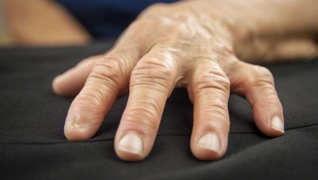 指甲上有白點、凹溝暗示什麼疾病?最完整!15個指甲透露的身體警訊,醫師一次整理