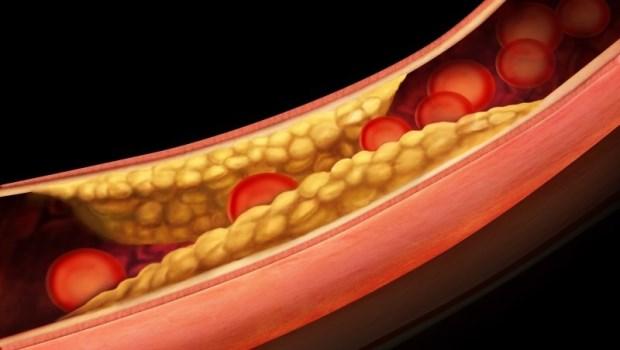 平常少碰甜、油炸食物,體重也正常…為何還是高血脂?6大核心問題,教你預防高血脂