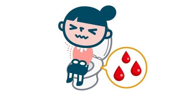 1歲孩子便秘有血絲,竟長2公分大腸瘜肉!孩子血便怎麼辦,兒科醫師給爸媽的處理3原則