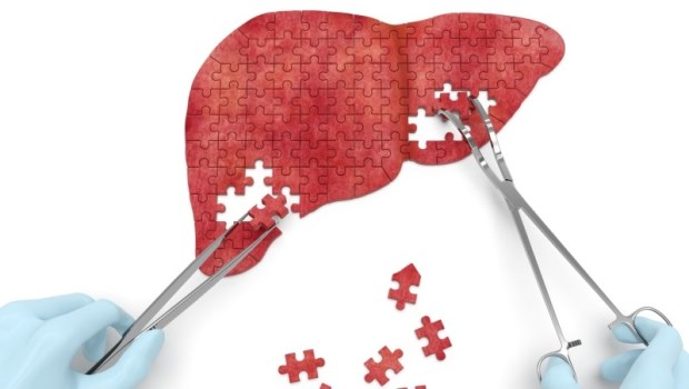「脂肪肝」放著不管,小心變成肝硬化!腸胃肝膽科醫師:出現3症狀要注意