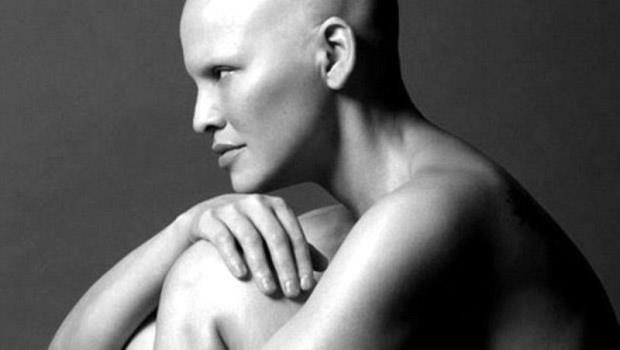「終於不用再刮腿毛了!」41歲抗癌女模:癌症帶來破壞,卻讓我重新改變