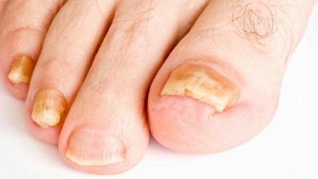 潮濕氣候最容易得灰指甲!不想黴菌感染,皮膚科醫師提醒:3種壞習慣不要做
