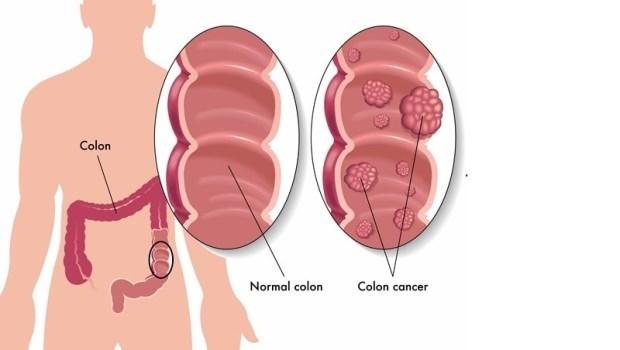 切息肉會痛嗎?發現就一定要切?健檢醫師:關於無痛腸胃鏡,你最想知道的4件事