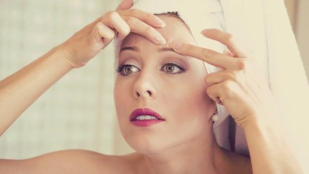 難對付的白頭粉刺怎麼辦?擠之前做「這件事」,讓粉刺自己浮出來