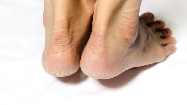 秋冬到,怎麼拼命抹保濕,腳跟還是一樣龜裂脫皮?把握兩個重點,就能輕鬆改善