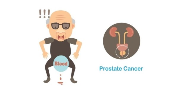 肚子脹痛、食慾差、照X光沒異狀,沒想到竟是攝護腺癌!健檢醫師:3個飲食習慣提高罹癌風險