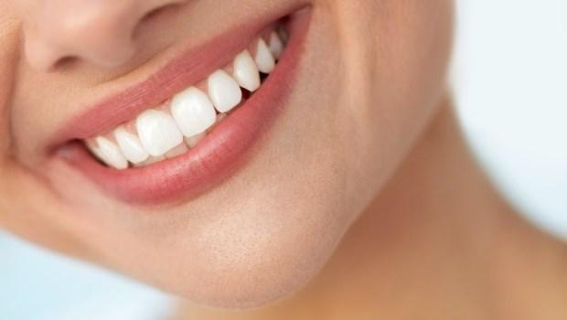網購美白貼片自己用,結果牙齒神經差點壞死!醫師警告:牙齒美白要注意3件事