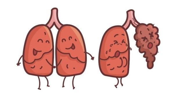 台灣女性肺癌,9成沒有抽菸史!醫師列舉:5種你不能忽視的罹癌因素