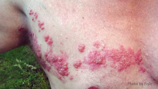 冬天最容易長皮蛇》皮膚科醫師警告:「這3個地方」有帶狀皰疹,當心嚴重併發症!