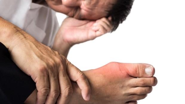 發作症狀類似痛風...「假性痛風」是急性關節炎!新陳代謝科醫師告訴你:兩個差在哪?