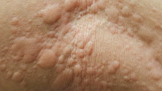 女性在30幾歲最容易得!免疫學醫師點名:8種容易導致「蕁麻疹」的食物過敏原