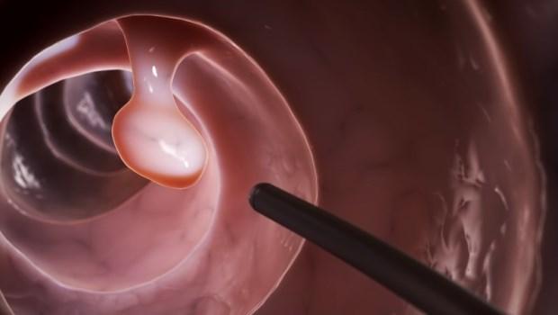 為什麼做大腸鏡檢查,有時連水都不能喝?麻醉醫師告訴你:你該懂的麻醉二三件事