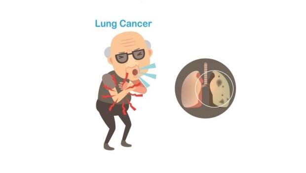 胸部X光檢查「無異常」卻得肺癌...台大胸腔外科醫師:唯一可以早期發現肺癌的健檢是...