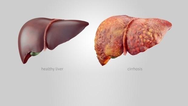 脂肪肝就是痰濕堆積物!50年經驗資深中醫師:遠離脂肪肝,你該多吃的6種食物
