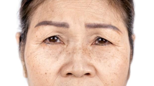 皺紋變多、眼窩凹陷...都是骨質疏鬆警訊!骨科醫師:想抗老,關鍵在活化「骨細胞」