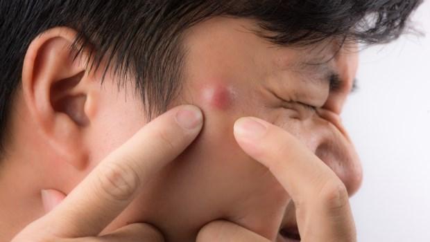 「這種痘痘」別亂擠,小心變蜂窩性組織炎!皮膚科醫師告訴你「長釘子」該怎麼辦
