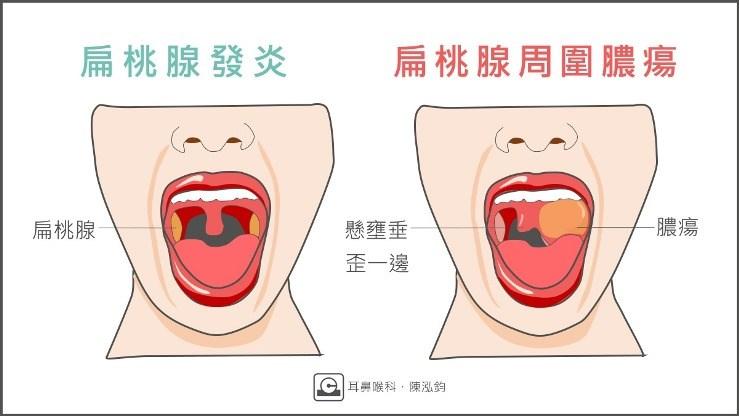 手術 扁桃 大人 腺