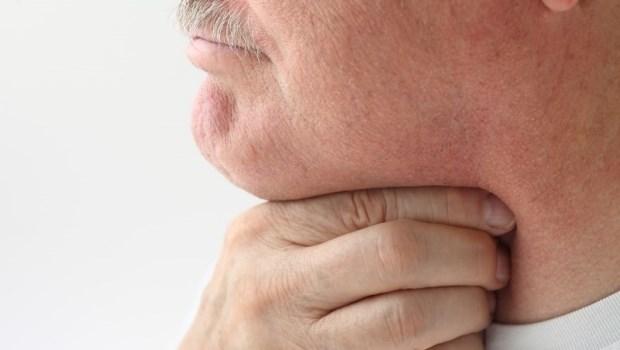 反覆嘴破、口水帶血...可能是癌症!醫師:過半腫瘤是惡性,50+男性最該當心